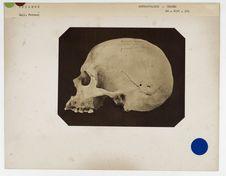 Islande : crâne d'Islande. Don de feu Prüner-Bey