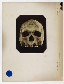 Sénégal : crâne de Sénégalais n°1660. Don de feu Prüner-Bey