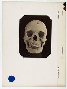 Mali : crâne de nègre du Soudan n° 2312. Don de feu Prüner-Bey