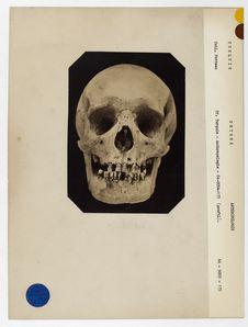 Turquie. Smyrne : crâne de Turc de Smyrne n° 772. Don de feu Prüner-Bey