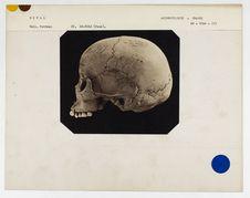 Népal : crâne d'indigène du Népal, n° 3506. Don de feu Prüner-Bey