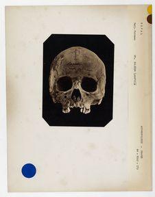 Népal : crâne d'indigène du Népal, n° 3506. Don de feu Prüner-Bey.