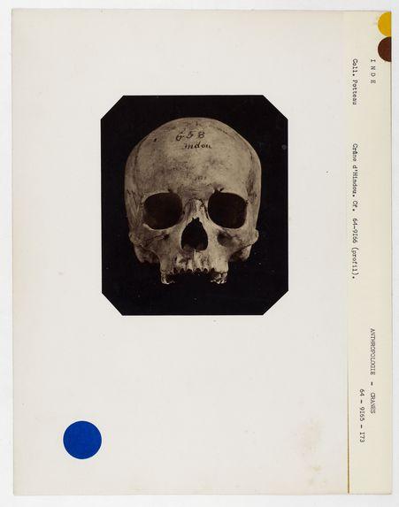 Inde : crâne d'Hindou n° 658. Don de feu Prüner-Bey
