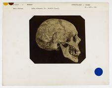 Inde : crâne d'Hindou, Bengale, n° 3499. Don de feu Prüner-Bey