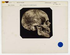 Inde : crâne d'Hindou, Malabar, n° 814. Don de feu Prüner-Bey
