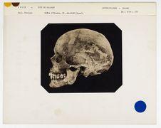 Inde : crâne d'Hindou, Malabar, n° 3501. Don de feu Prüner-Bey