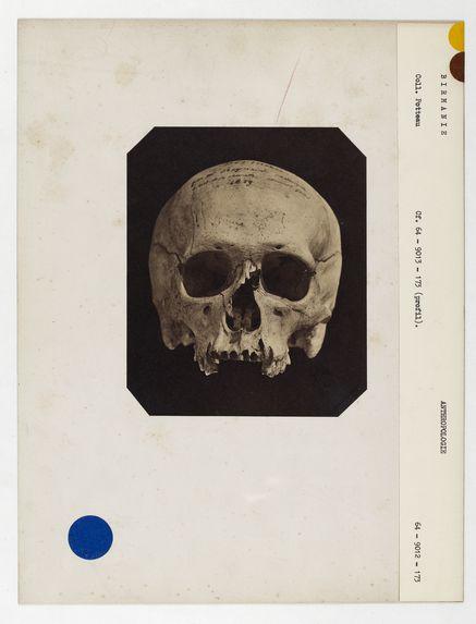 Birmanie : crâne de Birman, n° 3495. Don de feu Prüner-Bey