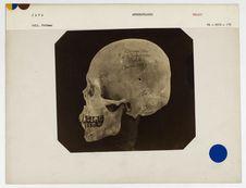 Java : crâne de Malais de Java, n° 1954. Don de feu Prüner-Bey