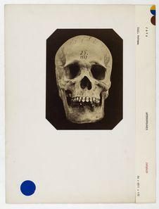 Java : crâne de Kostodjais, Javanais, n° 1977. Don de feu Prüner-Bey