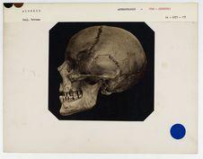 Algérie : crâne de Turc d'Alger (Kourougli) n° 773. Don de feu Prüner-Bey