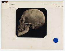 Algérie : crâne de Kabyle, n° 216. Don de feu Prüner-Bey