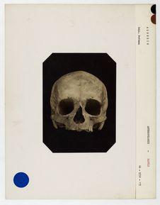 Algérie : crâne de femme Chaouia des Monts Aurès, n° 215. Don de feu Prüner-Bey