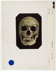 Algérie. Arabe- Smolus : crâne d'Arabe, Tribu des Smelas, n° 220. Don de feu...