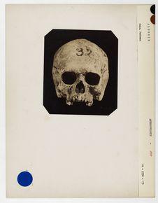 Algérie : crâne de Juif d'Algérie n° 255. Don de feu Prüner-Bey