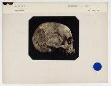 Algérie : crâne de femme juive d'Algérie n° 258. Don de feu Prüner-Bey