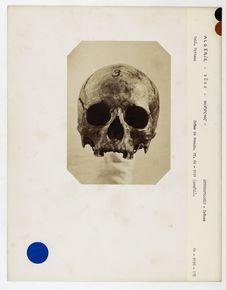 Tunisie. Bône : crâne de Romain, Hippone n° 226. Don de feu Prüner-Bey