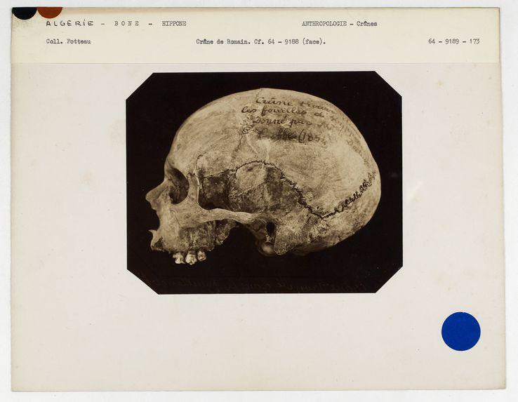 Tunisie. Bône : crâne de Romain, Hippone n° 252. Don de feu Prüner-Bey