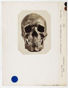 Egypte : crâne d'Egyptien ancien, Thèbes, n° 2323. Don de feu Prüner-Bey