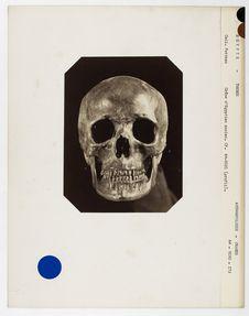Egypte : crâne d'Egyptien ancien, El Assassif, Thèbes, n° 2332. Don de feu...