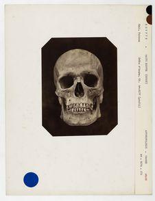Egypte : crâne d'Arabe de la Haute-Egypte (Syout), n° 2313. Don de feu...