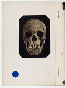 Mali : crâne de nègre du Soudan, n° 1562. Don de feu Prüner-Bey