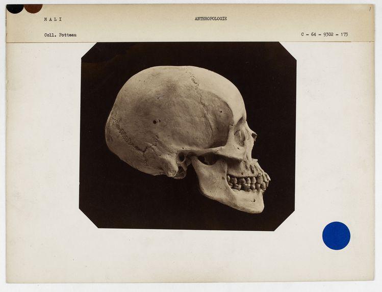 Mali : crâne de nègre du Soudan, n° 2312. Don de feu Prüner-Bey