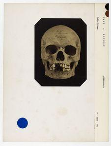Mali : crâne de nègre de Bournou, n° 3602. Don de feu Prüner-Bey