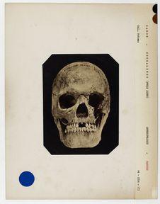 Gabon : crâne de Goubalembo, (Poule Jaune) femme Pahouine, n° 1286. Don de feu...