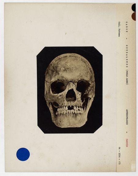Gabon : crâne de Goubalembo, (Poule Jaune) femme Pahouine, n° 1286. Don de feu Prüner-Bey