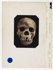 Afrique du Sud. Cap de Bonne Espérance : crâne de Namaquois Hottentot, n° 3591....