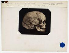 Afrique du Sud. Cap de Bonne Espérance : crâne d'une fillette Boschimane, 8 ans,...