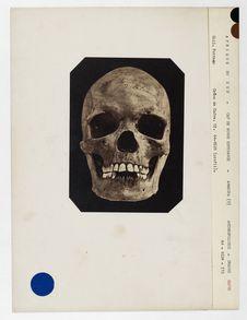 Afrique du Sud. Cap de Bonne Espérance : crâne de Cafre, Amakosa, n° 3585. Don...
