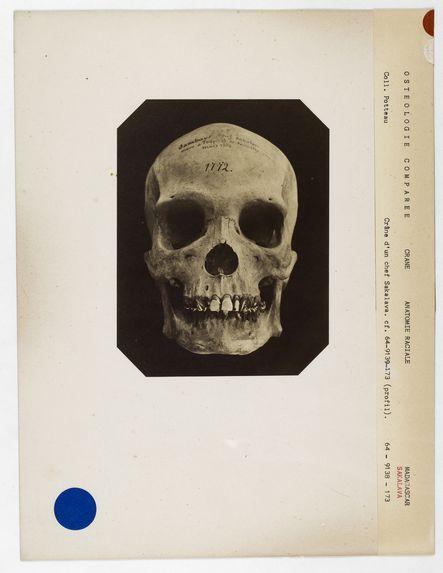 Madagascar : crâne de Sambaye, chef Sakalave, n° 1772. Don de feu Prüner-Bey