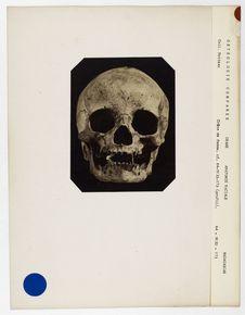 Madagascar : crâne de femme malgache n° 818. Don de feu Prüner-Bey