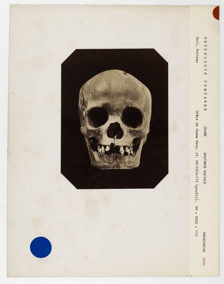 Madagascar : crâne de femme Hova, n° 1499. Don de feu Prüner-Bey