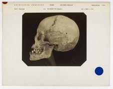 Madagascar : crâne de Hova, n° 1500. Don de feu Prüner-Bey