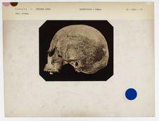 Canada : crâne de femme de Kotzebue-Sound (n° 5682, coll. Gall n° 258). Don de...