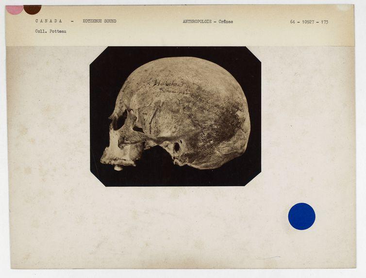 Canada : crâne de femme de Kotzebue-Sound (n° 5682, coll. Gall n° 258). Don de feu Prüner-Bey