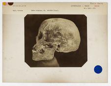 Groenland : crâne d'Eskimau du Groenland, n° 3497. Don de feu Prüner-Bey