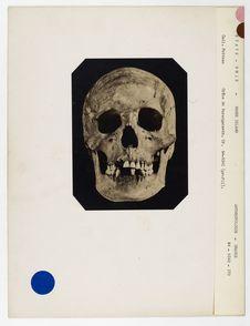 Etats-Unis : crâne de Narragansett, Rhode Island, n° 1258. Don de feu Prüner-Bey