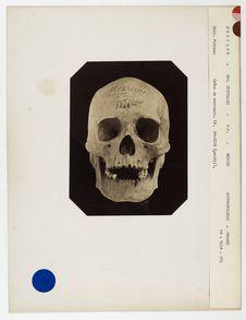 Mexique. Régions centrales, Mexico : crâne de Mexicain, n° 1248 (bis). Don de...