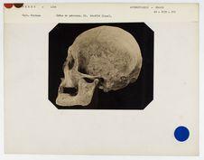 Pérou. Lima : crâne de Péruvien moderne n° 3608. Don de feu Prüner-Bey
