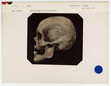 Pérou : crâne de Péruvienne de Pisco, n° 805. Don de feu Prüner-Bey