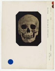 Pérou : crâne de Péruvienne de Pisco, n° 803. Don de feu Prüner-Bey