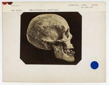Brésil : crâne de Botocudo, n° 1129. Don de feu Prüner-Bey