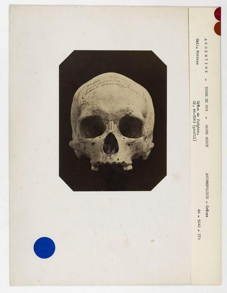Argentine. Terre de Feu : crâne de Fuégien du Hâvre-Mercy n° 2283. Don de feu Prüner-Bey