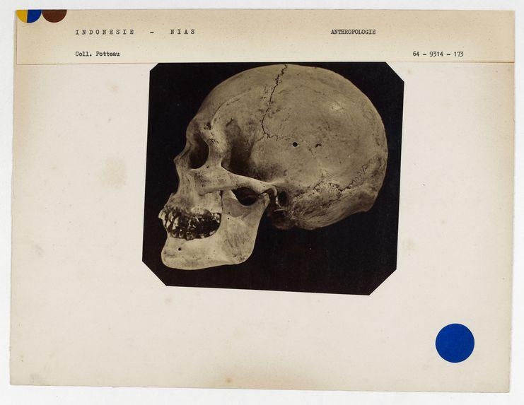 Indonésie : crâne de Nias, n° 1261. Don de feu Prüner-Bey