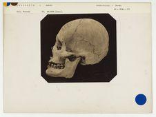 Indonésie : crâne de Bornéo n° 3504. Don de feu Prüner-Bey