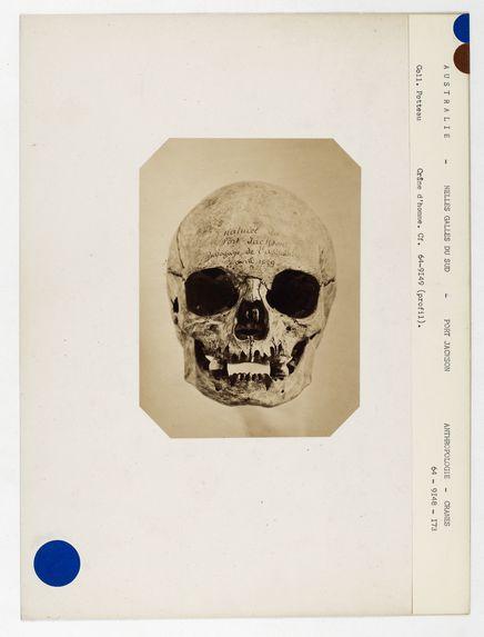 Australie. Nouvelles-Galles du Sud : crâne d'Australien de Port-Jackson n° 3628. Don de feu Prüner-Bey