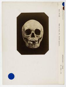 Australie : crâne d'Australienne n° 1508. Don de feu Prüner-Bey